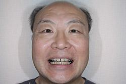 治療開始2か月後 顔貌