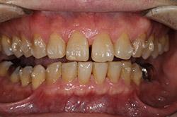 治療開始2か月後 口腔内